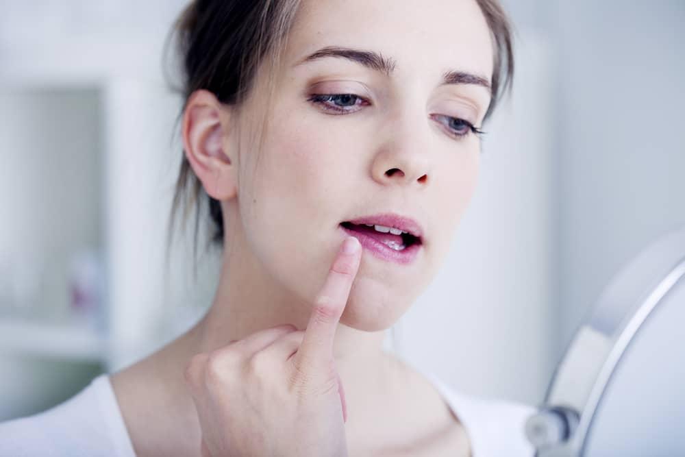 L'herpès: ce que vous devez savoir